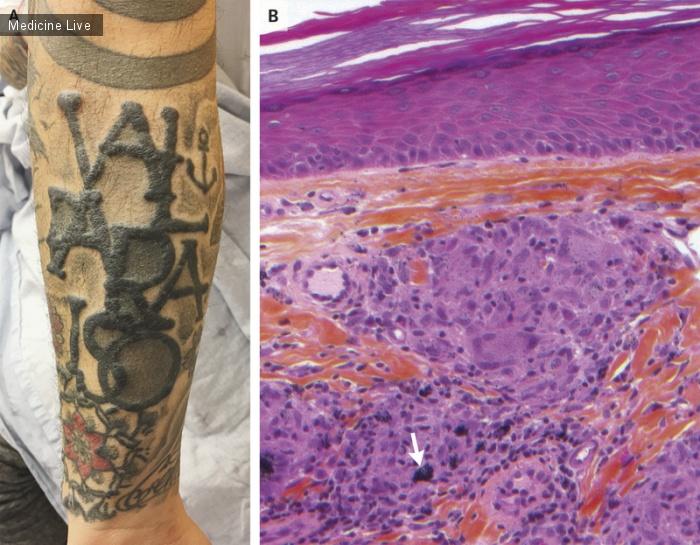 Интересный случай: Саркоидальная реакция на татуировку