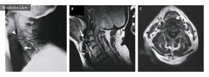Интересный случай: Передние шейные остеофиты, вызывающие непроходимость дыхательных путей