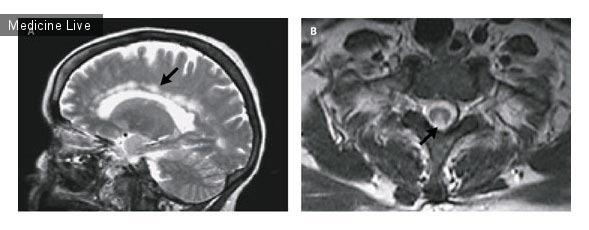 Интересный случай: Неврологические проявления дефицита витамина B12