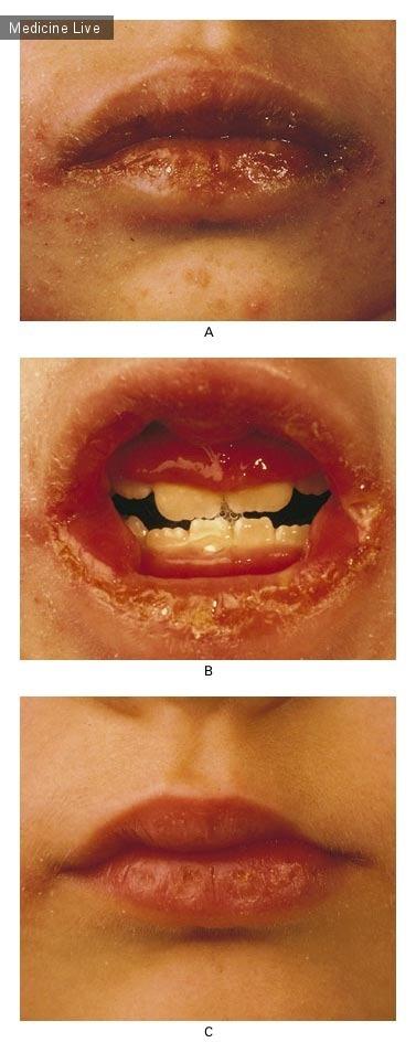 Интересный случай: Оральные проявления болезни Крона