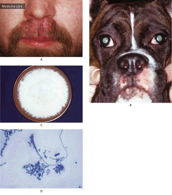 Интересный случай: Стригущий лишай бороды: человек и животное