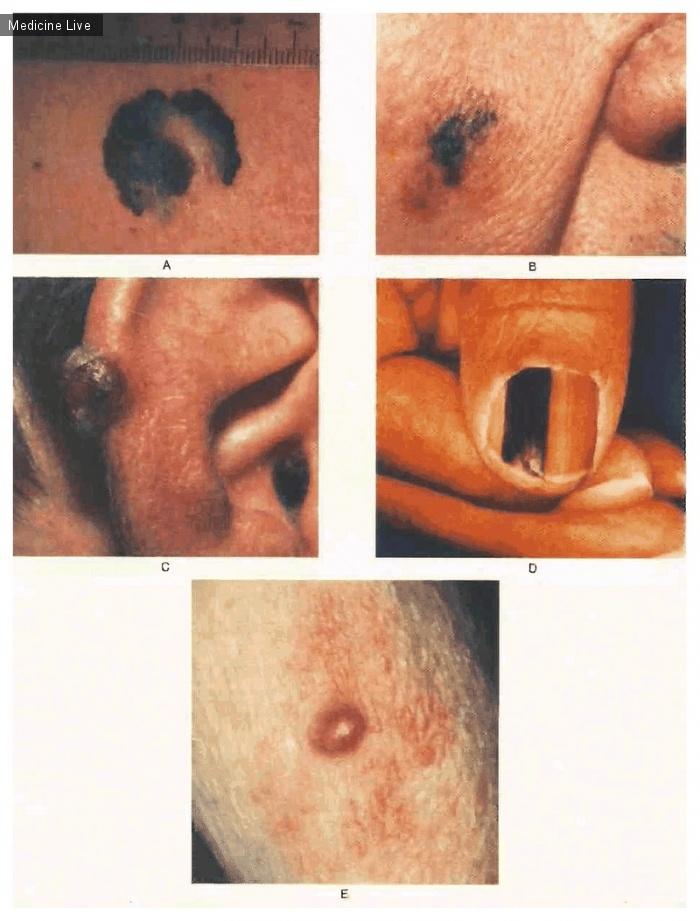 Интересный случай: Злокачественная меланома