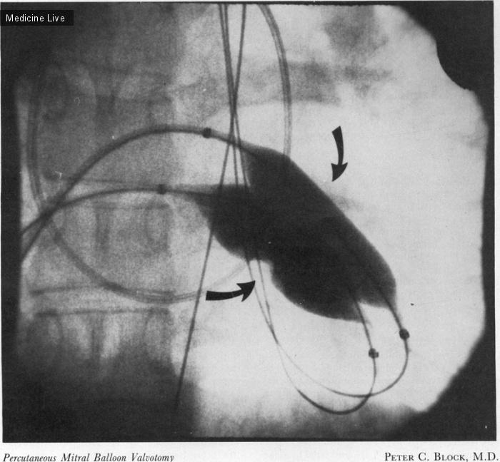 Интересный случай: Чрескожная митральная баллонная вальвулотомия