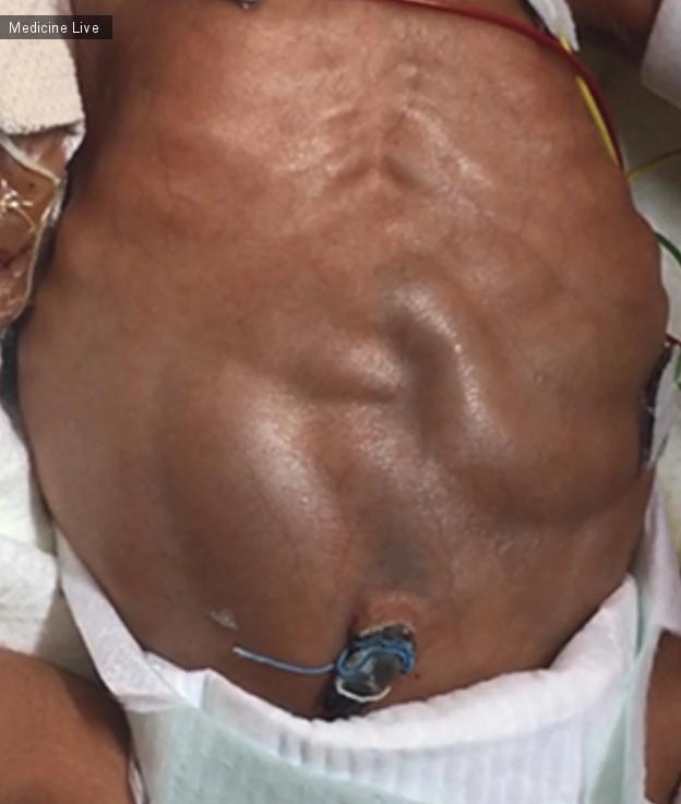 Интересный случай: Видимая перистальтика кишечника у новорожденного