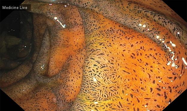 Интересный случай: Псевдомеланоз двенадцатиперстной кишки