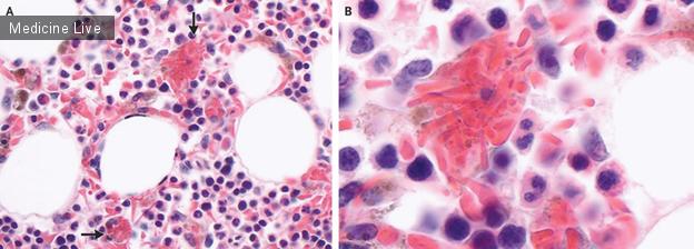 Интересный случай: Гемофагоцитоз серповидных клеток