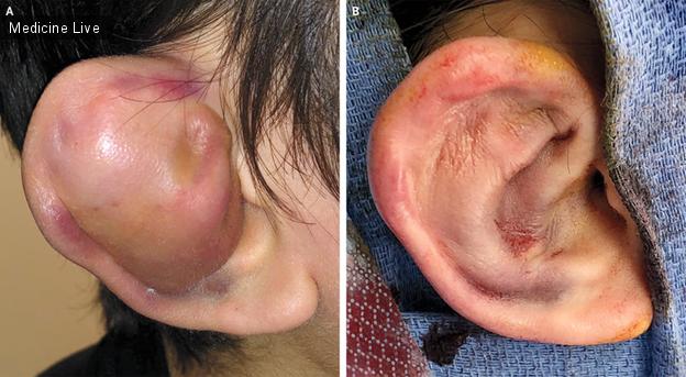 Интересный случай: Гематома ушной раковины