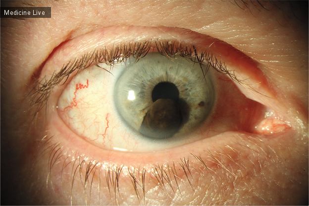 Интересный случай: Иридоцилиарная меланома