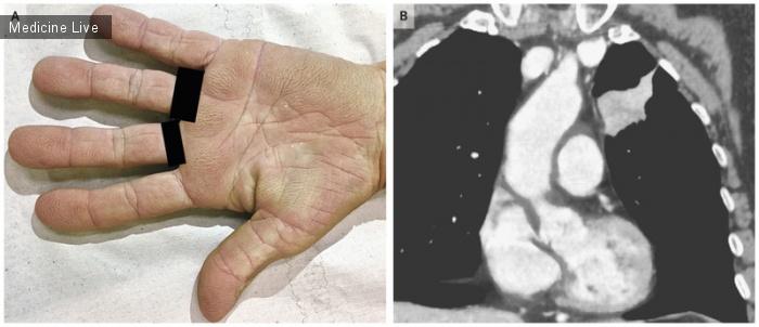 Интересный случай: Бархатные пальцы