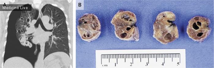 Интересный случай: Лимфангиолейомиоматоз