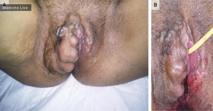 Интересный случай: Тяжелое варикозное расширение вен при беременности