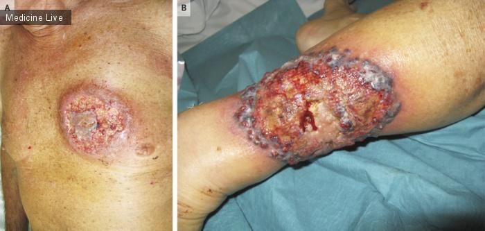 Интересный случай: Гангренозная пиодермия при язвенном колите