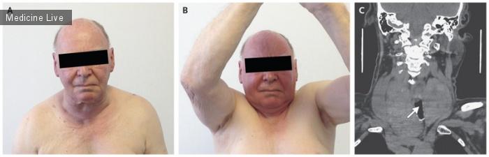 Интересный случай: Симптом Пембертона у пациента с зобом