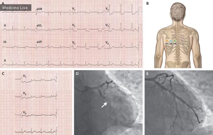 Интересный случай: Инфаркт миокарда задней стенки
