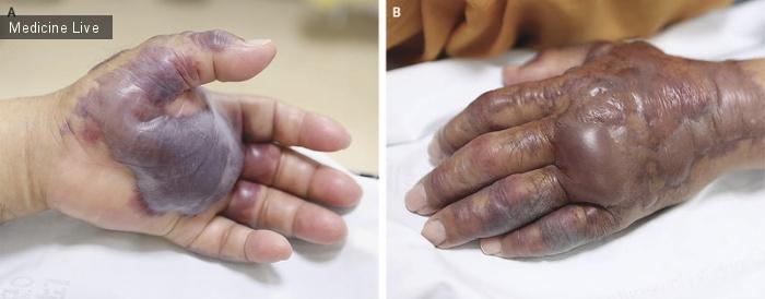 Интересный случай: Инфекция, вызванная Vibrio vulnificus