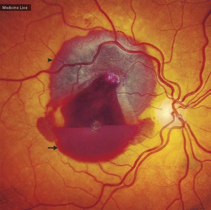 Интересный случай: Кровоизлияние в сетчатку от тупой травмы глаза