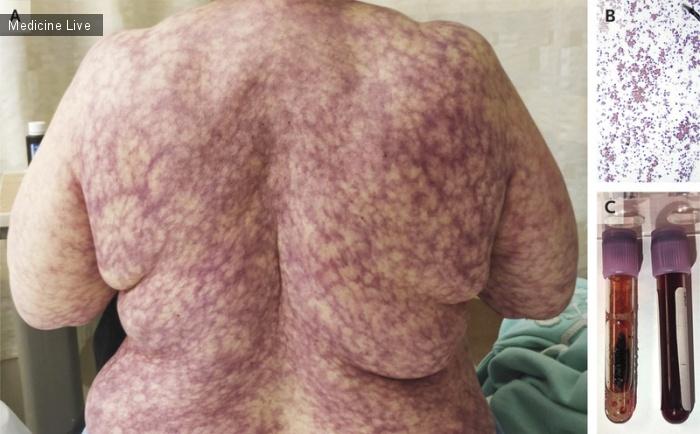 Интересный случай: Болезнь холодовых агглютининов
