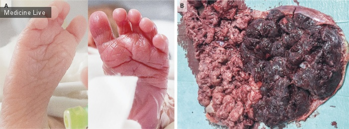 Интересный случай: Синдром анемии-полицитемии новорожденных