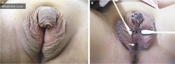 Интересный случай: Врожденная гиперплазия коры надпочечников