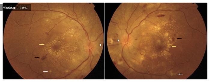 Интересный случай: Гипертоническая ретинопатия, связанная с преэклампсией
