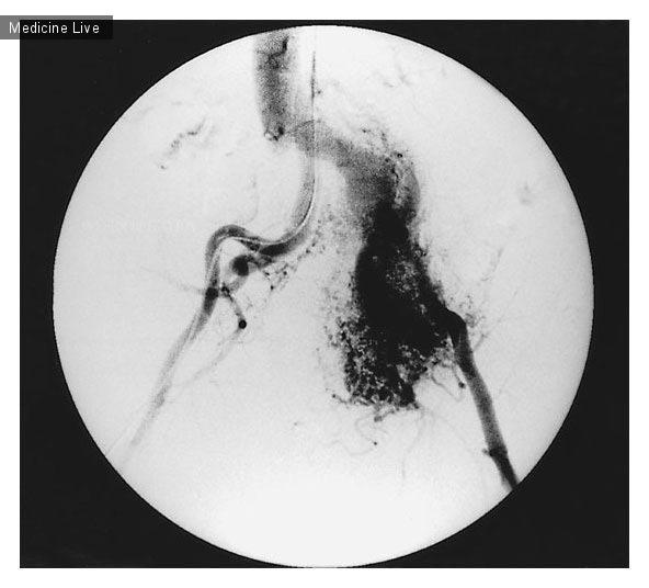 Интересный случай: Массивная артериовенозная мальформация