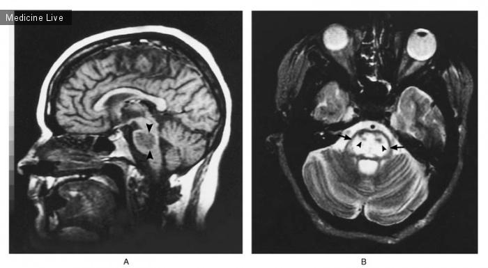 Интересный случай: Осмотический миелинолизис