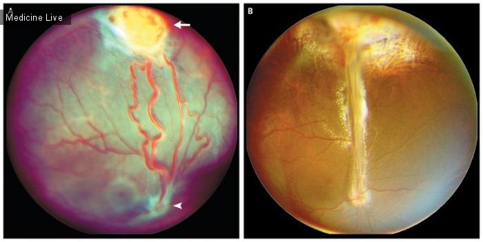 Интересный случай: Гемангиобластома сетчатки при болезни фон Гиппеля – Линдау
