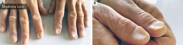 Интересный случай: Койлонихия при железодефицитной анемии