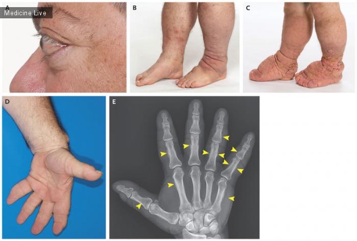 Интересный случай: Тиреоидная офтальмопатия, дермопатия и акропахия