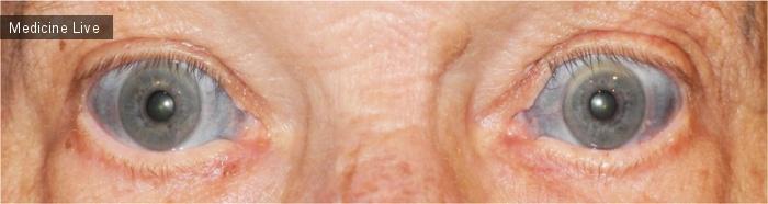 Интересный случай: Изменение цвета склер в результате лечения миноциклином