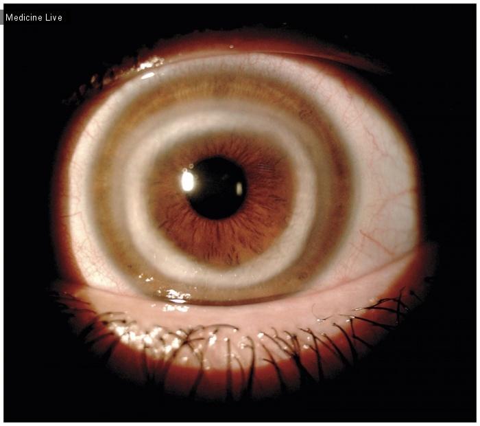 Интересный случай: Интерстициальный кератит при синдроме Когана