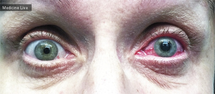 Интересный случай: Острая закрытоугольная глаукома