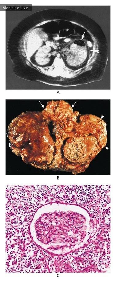 Интересный случай: Эмфизематозный пиелонефрит