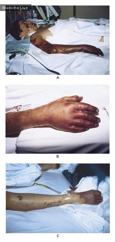 Интересный случай: Синдром Уотерхауса – Фридериксена