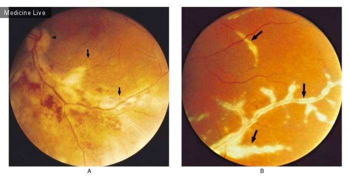 Интересный случай: Цитомегаловирусный ретинит при СПИДе