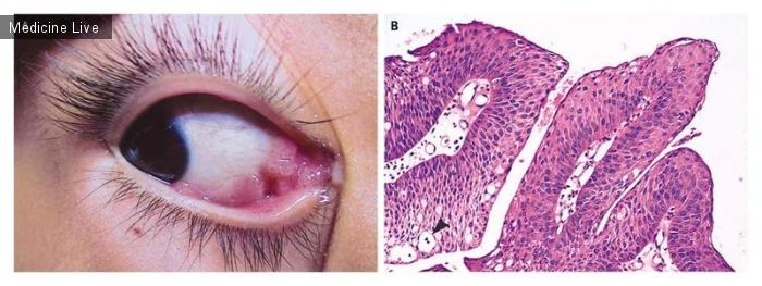 Интересный случай: Вирусная папиллома конъюнктивы