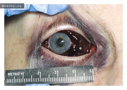 Интересный случай: Кровоизлияние в глаз из-за антикоагуляции
