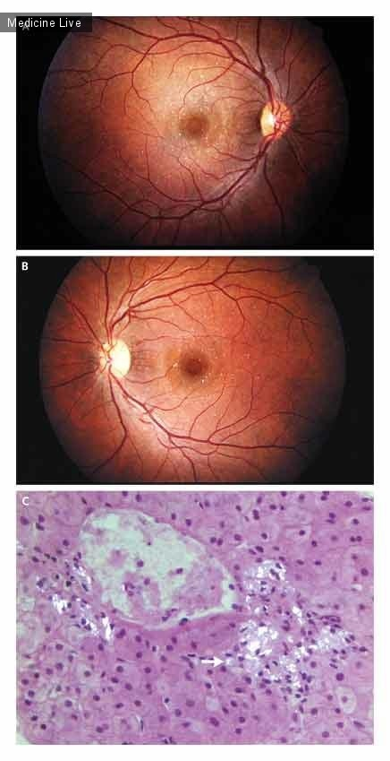 Интересный случай: Тальковая ретинопатия