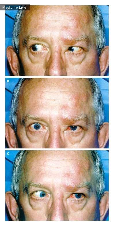 Интересный случай: Паралич левого шестого черепного нерва с офтальмологическим опоясывающим герпесом