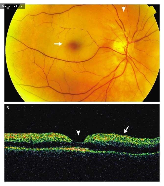 Интересный случай: Окклюзия центральной артерии сетчатки