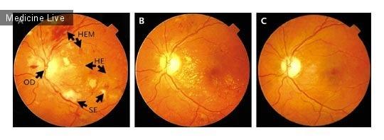 Интересный случай: Улучшение гипертонической ретинопатии после лечения гипертонии