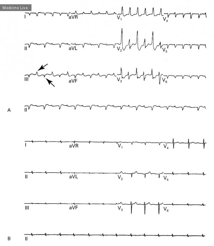 Интересный случай: Дигоксин-индуцированная двунаправленная желудочковая тахикардия