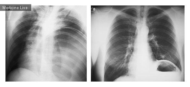 Интересный случай: ГПОД, имитирующая напряженный пневмоторакс
