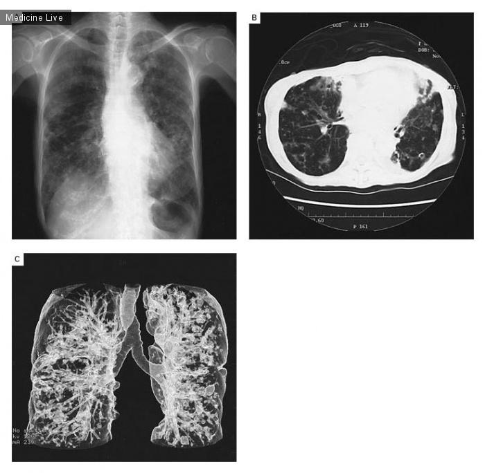 Интересный случай: Бронхоэктазия, вызванная комплексной инфекцией Mycobacterium avium