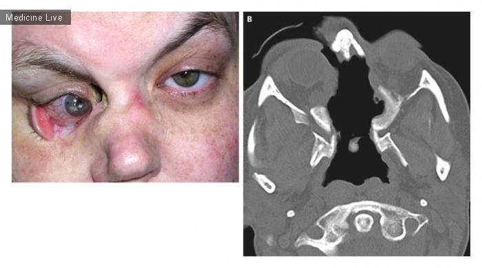 Интересный случай: Деструктивное поражения глаза при гранулематозе Вегенера