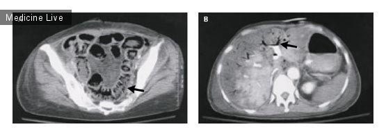 Интересный случай: Пневматик кишечника и газ в воротной вене