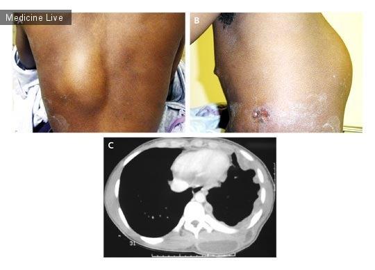 Интересный случай: Туберкулезная эмпиема плевры