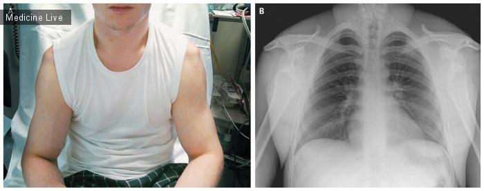 Интересный случай: Двусторонний передний вывих плеча