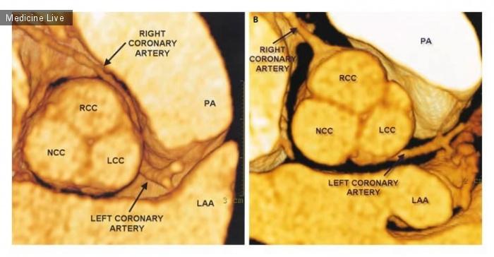 Интересный случай: Аномальное отхождение правой коронарной артерии