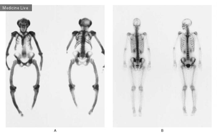 Интересный случай: Болезнь Педжета костей